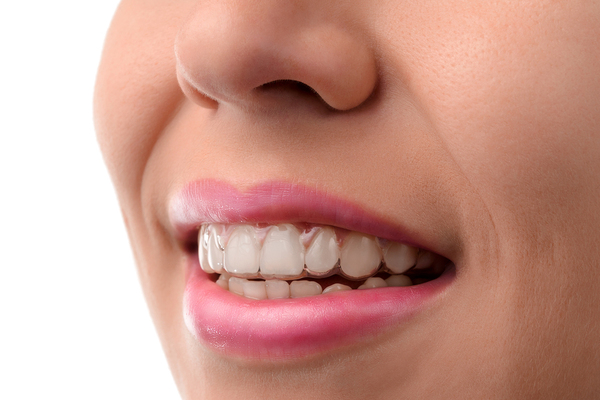 Traits of an Invisalign that you didn't know about